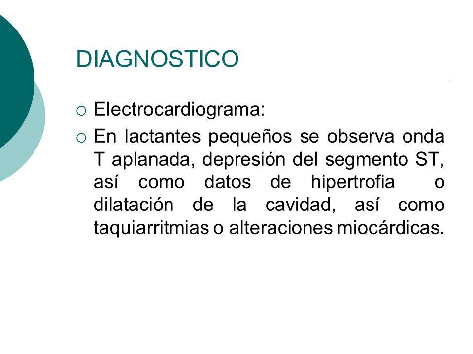 DIAGNOSTICO Electrocardiograma: