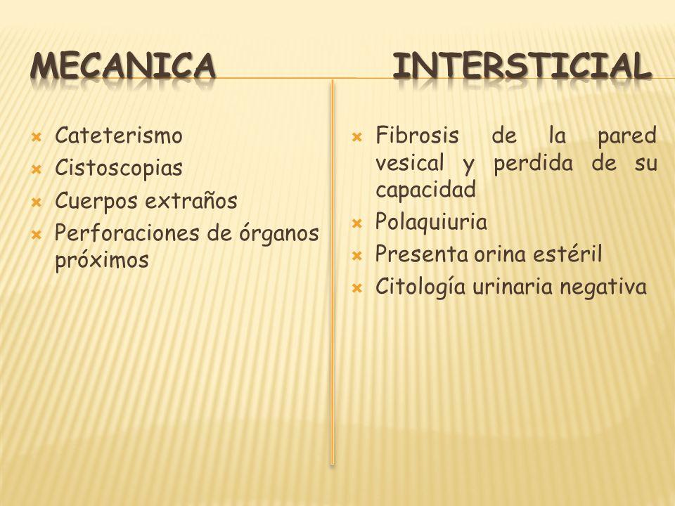 MECANICA INTERSTICIAL