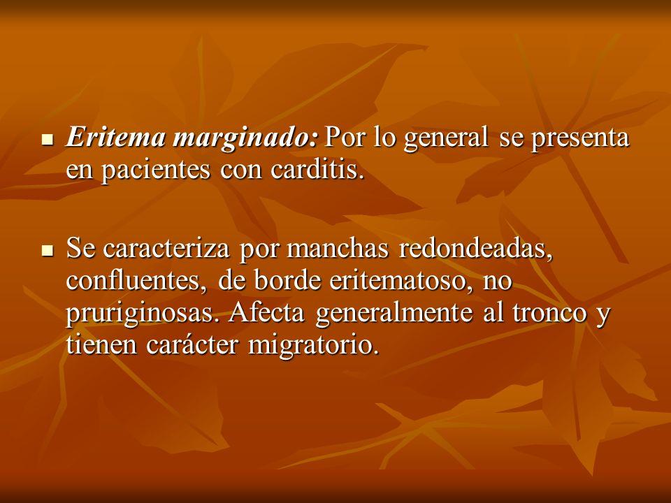 Eritema marginado: Por lo general se presenta en pacientes con carditis.