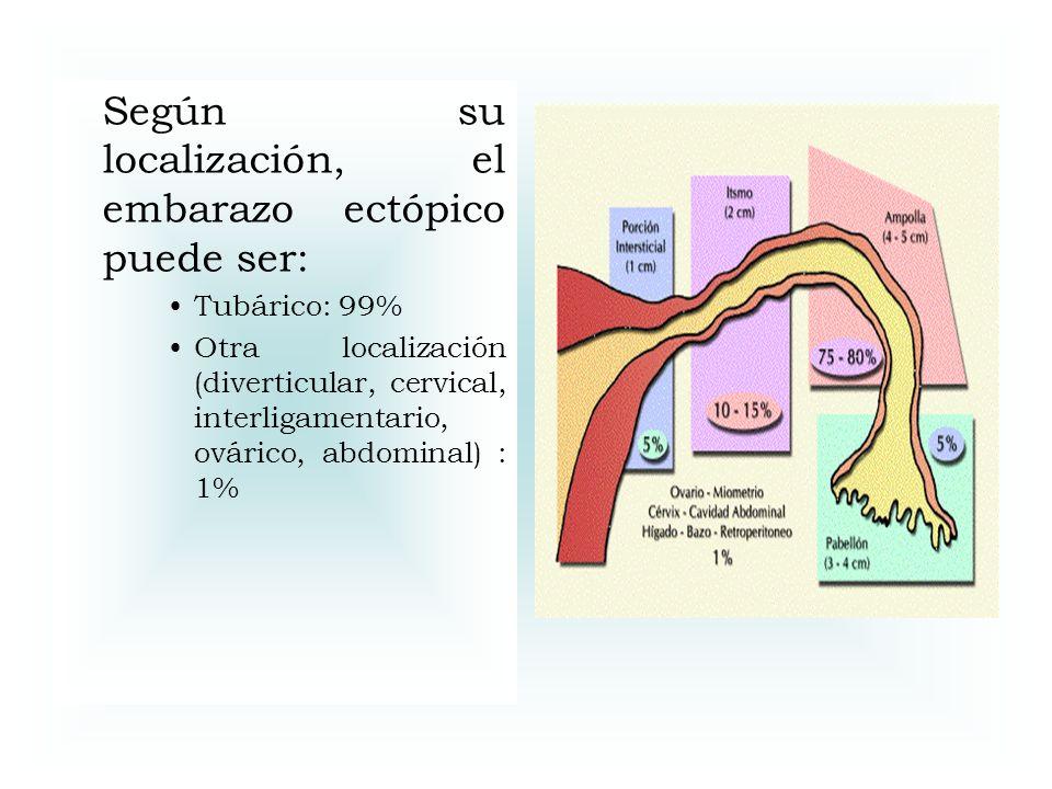 Según su localización, el embarazo ectópico puede ser:
