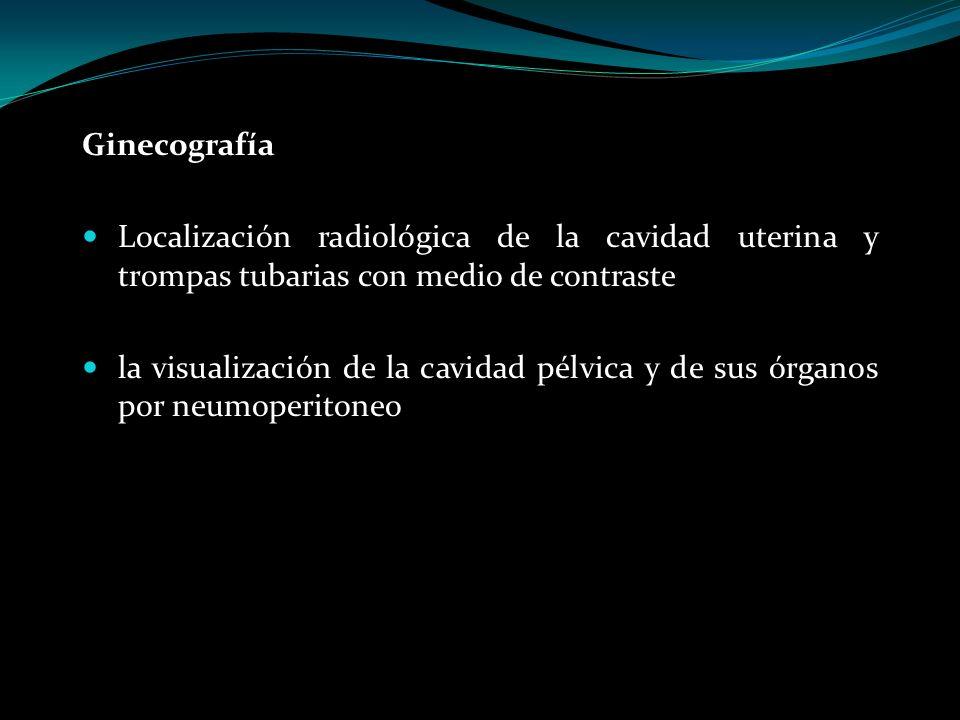 Ginecografía Localización radiológica de la cavidad uterina y trompas tubarias con medio de contraste.