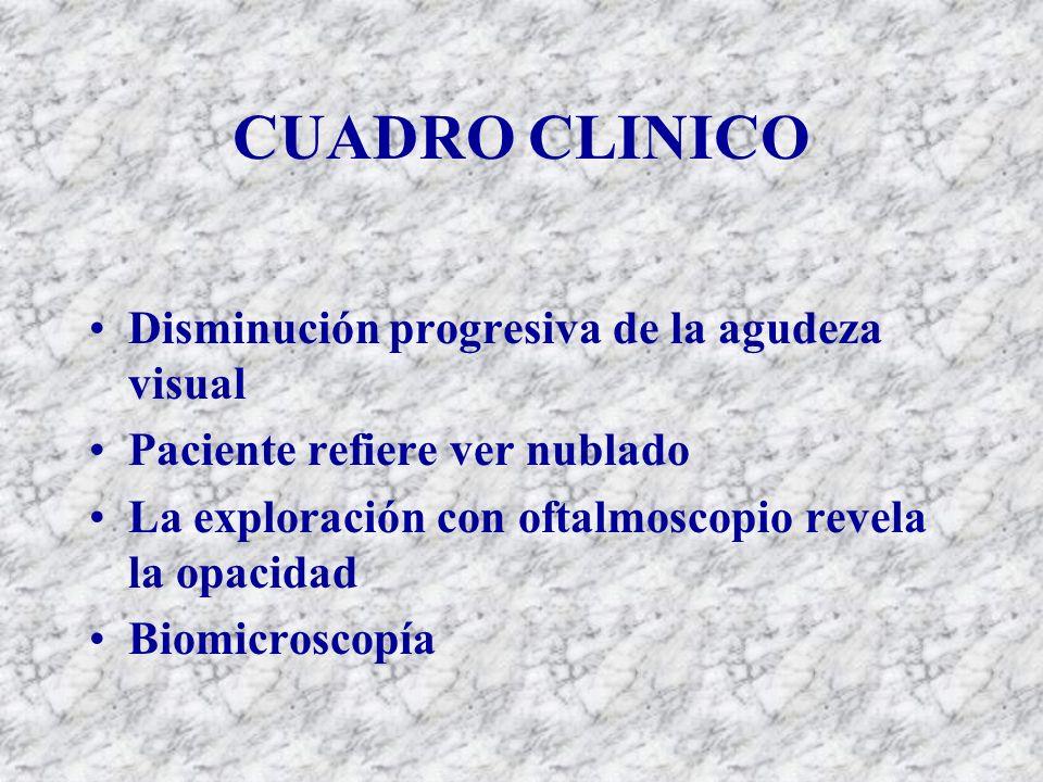 CUADRO CLINICO Disminución progresiva de la agudeza visual