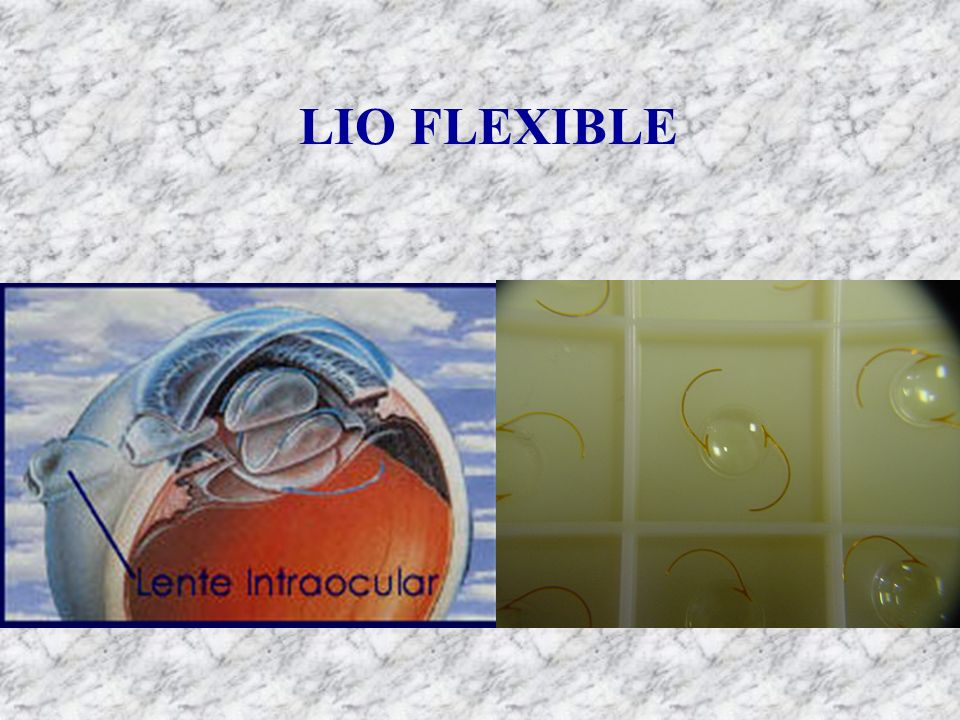 LIO FLEXIBLE