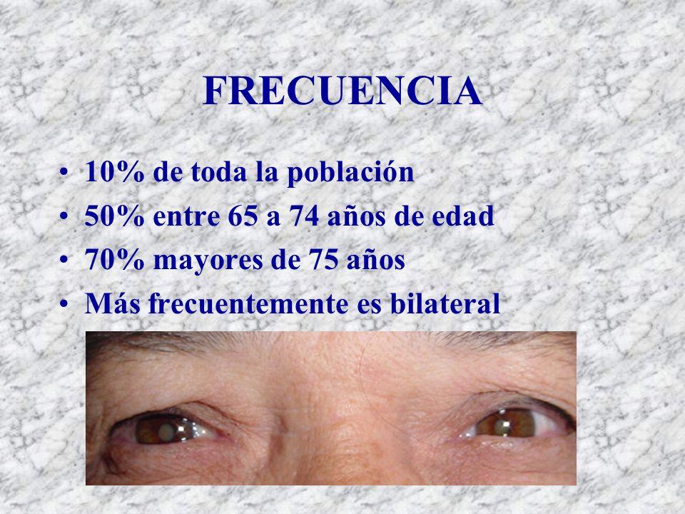 FRECUENCIA 10% de toda la población 50% entre 65 a 74 años de edad