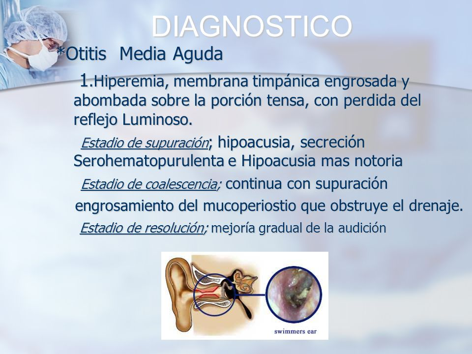 DIAGNOSTICO *Otitis Media Aguda