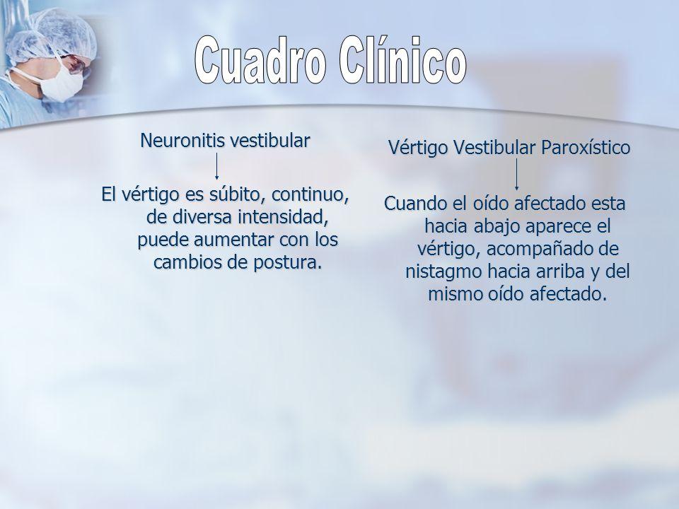 Cuadro Clínico Vértigo Vestibular Paroxístico Neuronitis vestibular