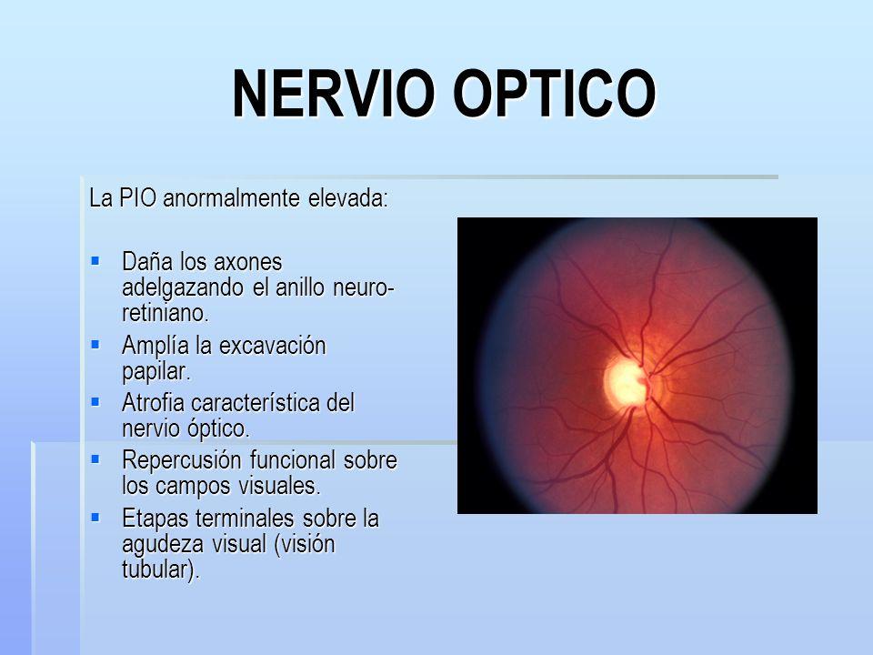 NERVIO OPTICO La PIO anormalmente elevada: