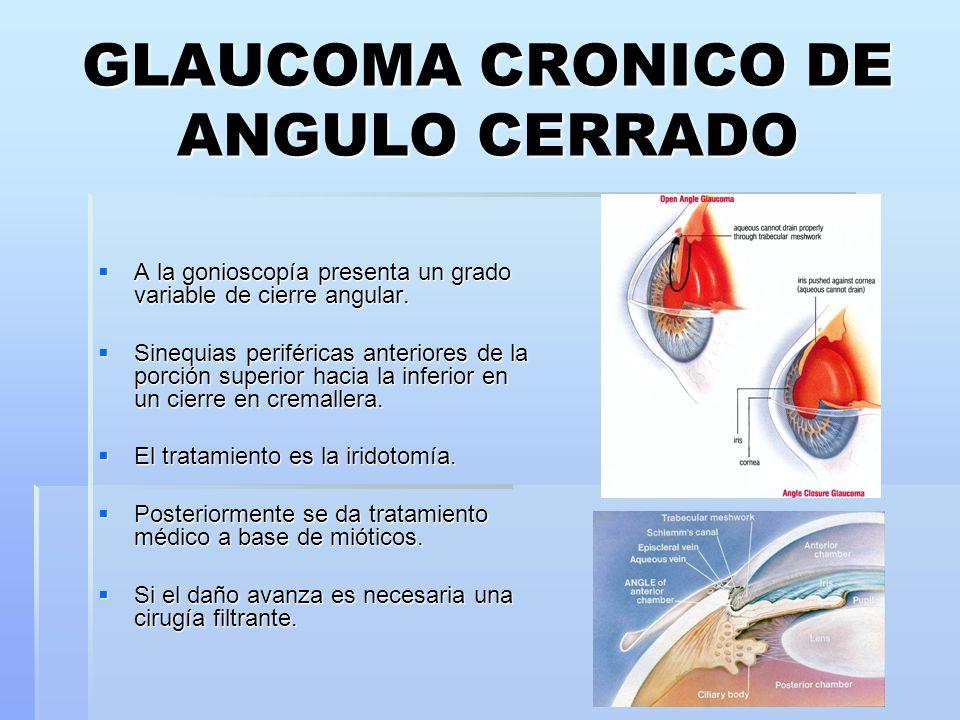 GLAUCOMA CRONICO DE ANGULO CERRADO