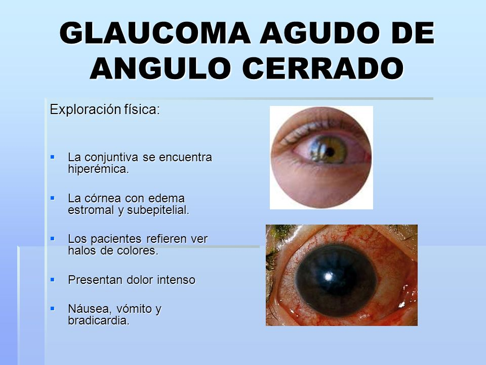 glaucoma essay In the following several pages will be explained the remedies, medicine, and process of observing glaucoma the grounds this was wrote on glaucoma, was because i have.