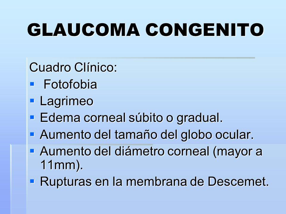 GLAUCOMA CONGENITO Cuadro Clínico: Fotofobia Lagrimeo