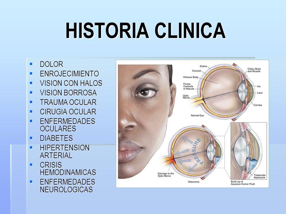 HISTORIA CLINICA DOLOR ENROJECIMIENTO VISION CON HALOS VISION BORROSA