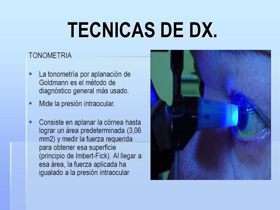 TECNICAS DE DX. TONOMETRIA