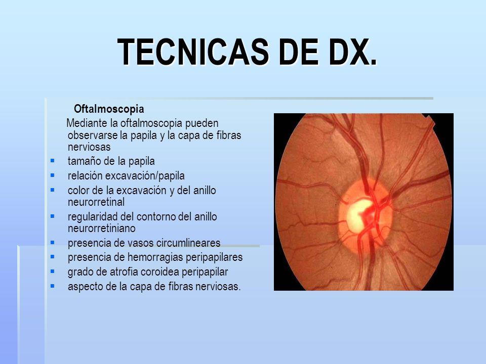 TECNICAS DE DX. Oftalmoscopia