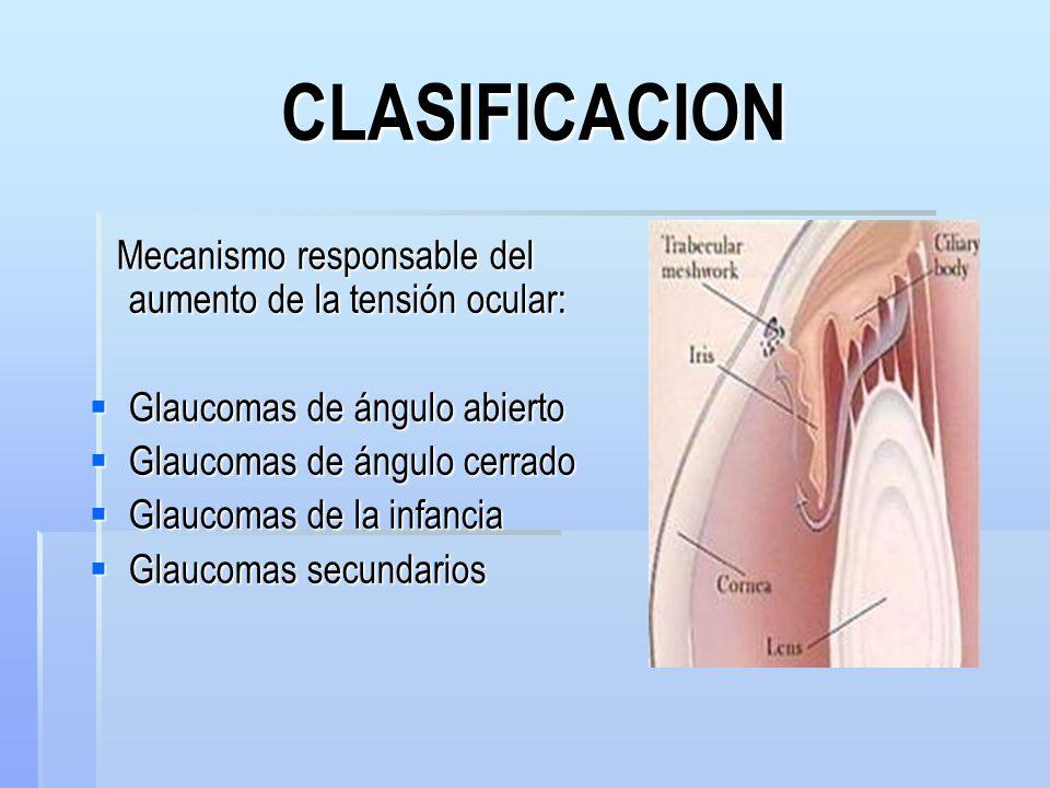 CLASIFICACION Mecanismo responsable del aumento de la tensión ocular: