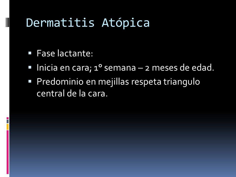 Dermatitis Atópica Fase lactante: