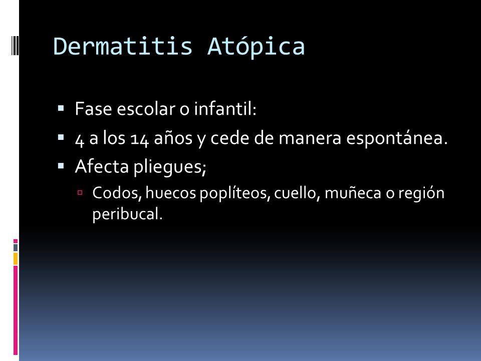 Dermatitis Atópica Fase escolar o infantil: