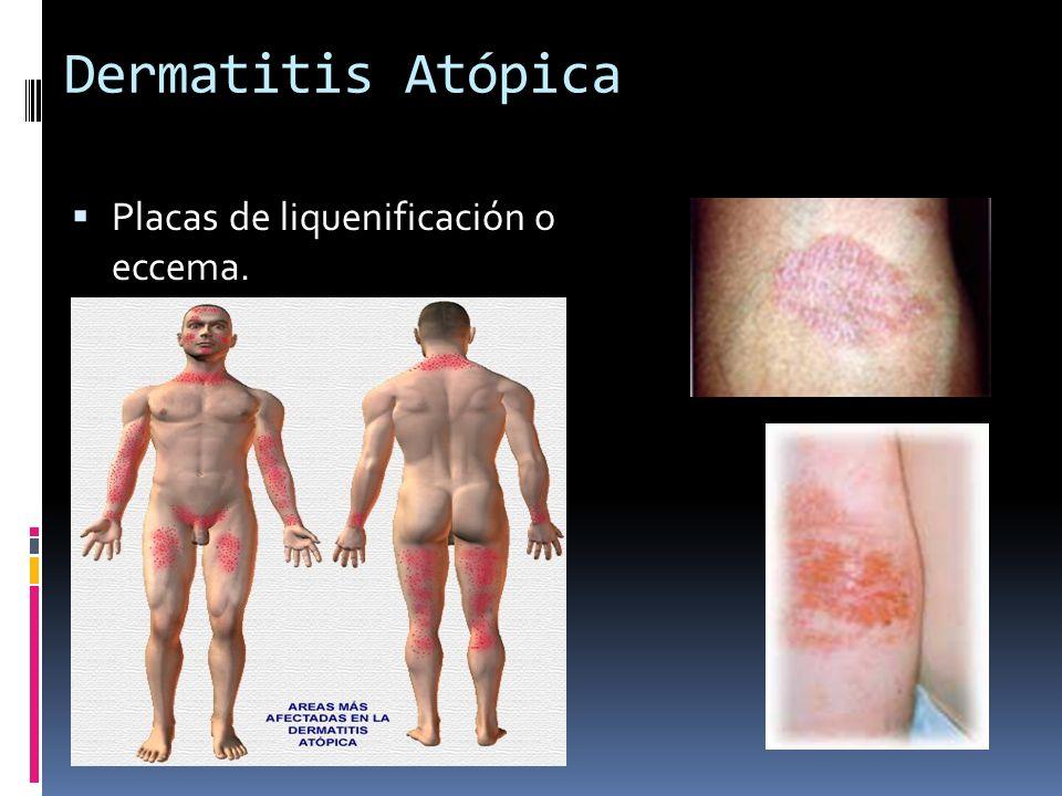Dermatitis Atópica Placas de liquenificación o eccema.