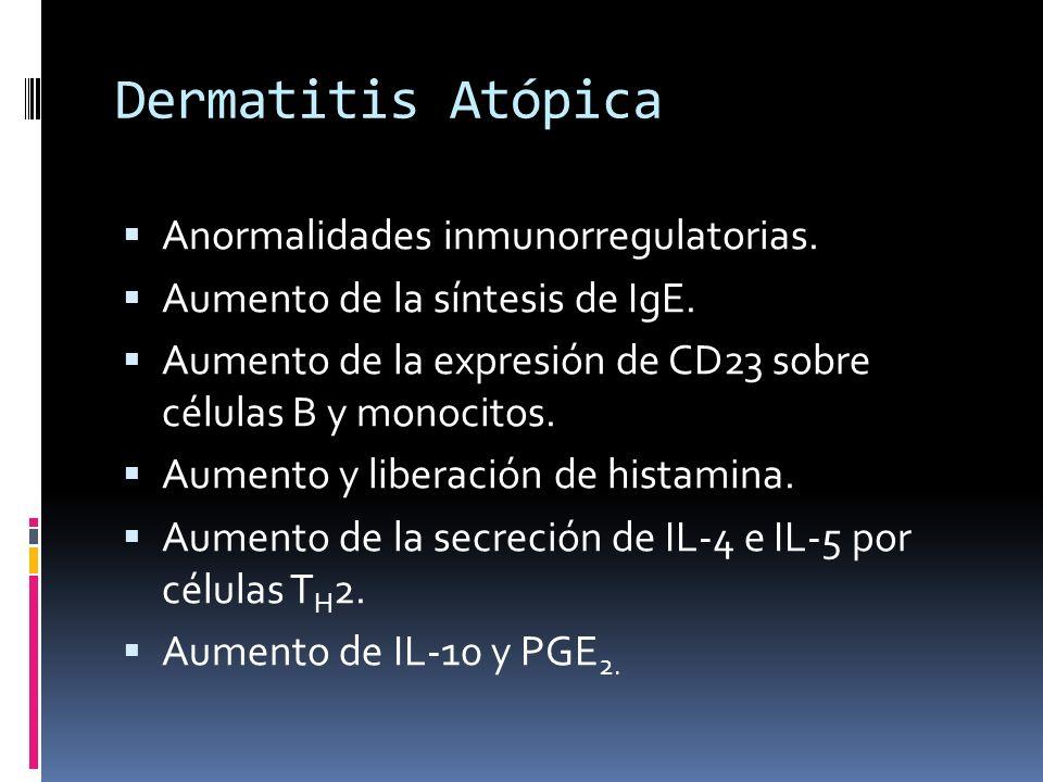 Dermatitis Atópica Anormalidades inmunorregulatorias.