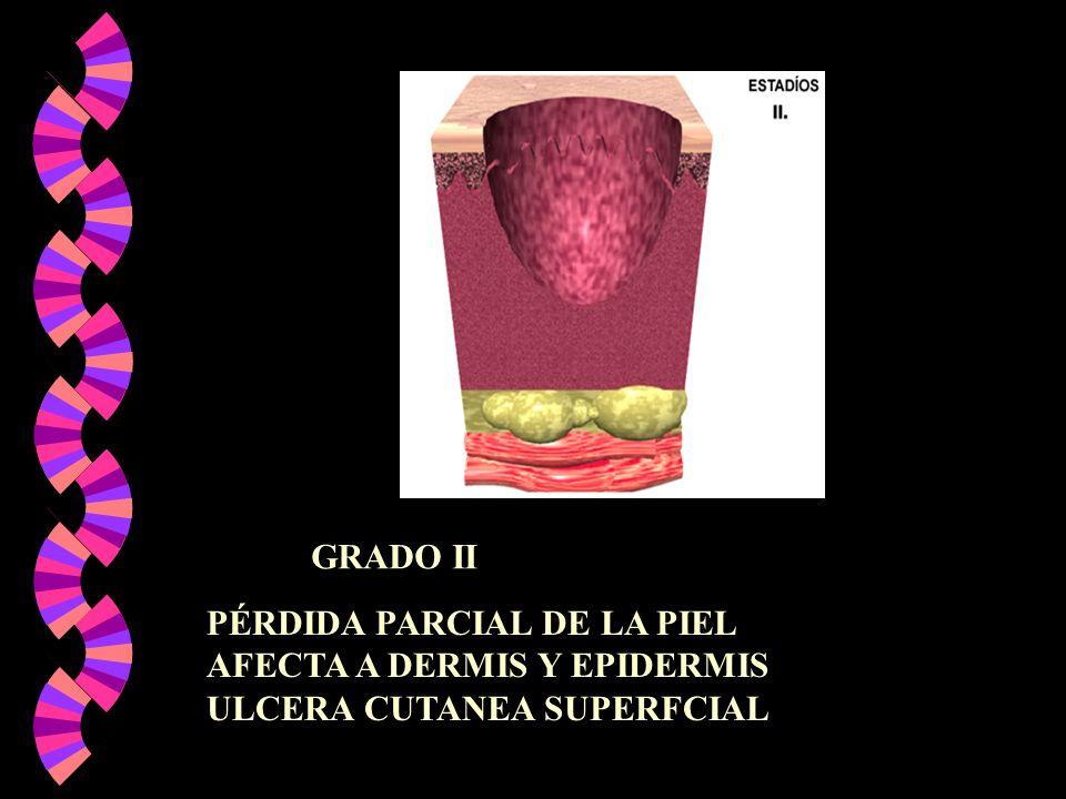 GRADO II PÉRDIDA PARCIAL DE LA PIEL AFECTA A DERMIS Y EPIDERMIS ULCERA CUTANEA SUPERFCIAL