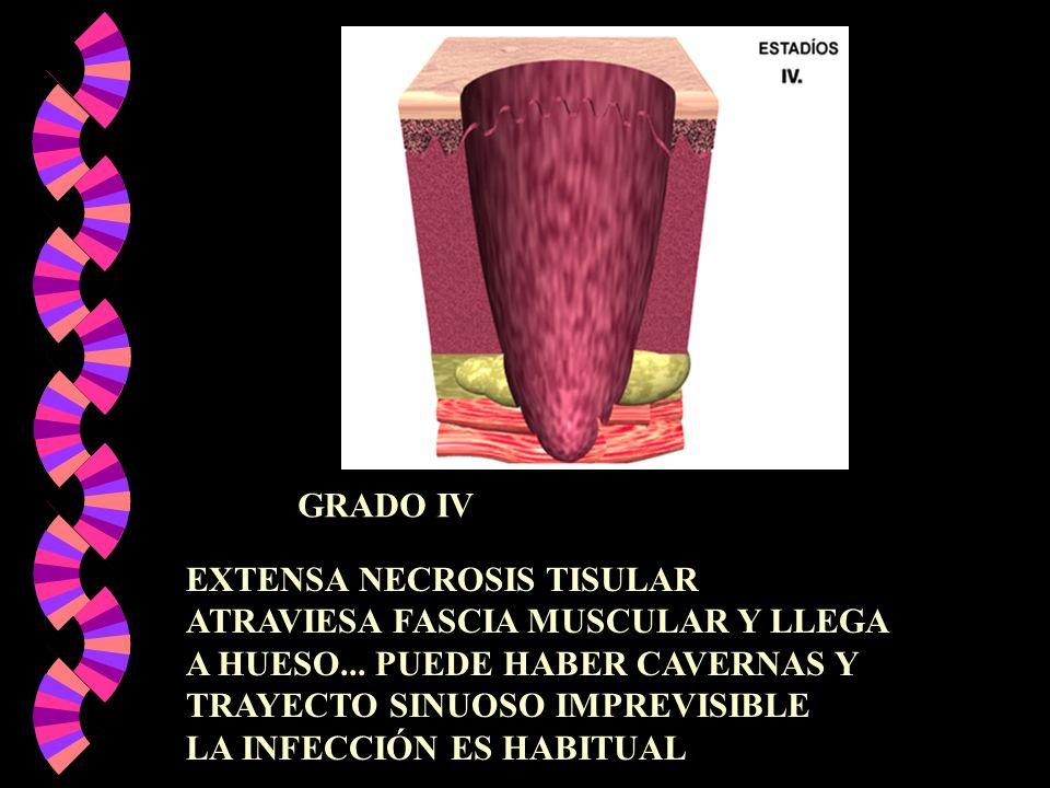GRADO IVEXTENSA NECROSIS TISULAR. ATRAVIESA FASCIA MUSCULAR Y LLEGA. A HUESO... PUEDE HABER CAVERNAS Y.