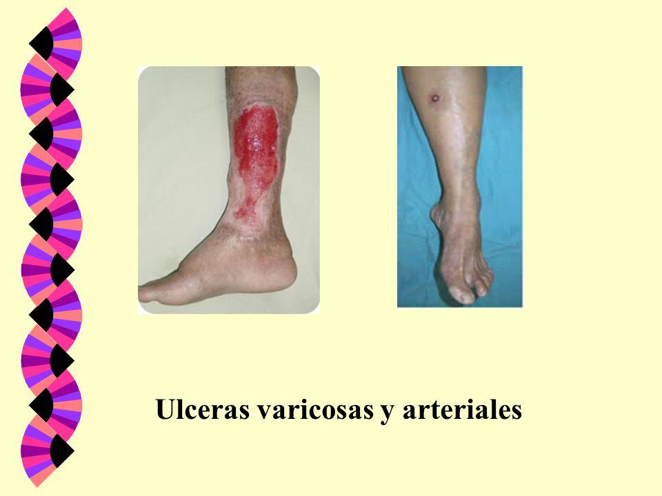 Ulceras varicosas y arteriales