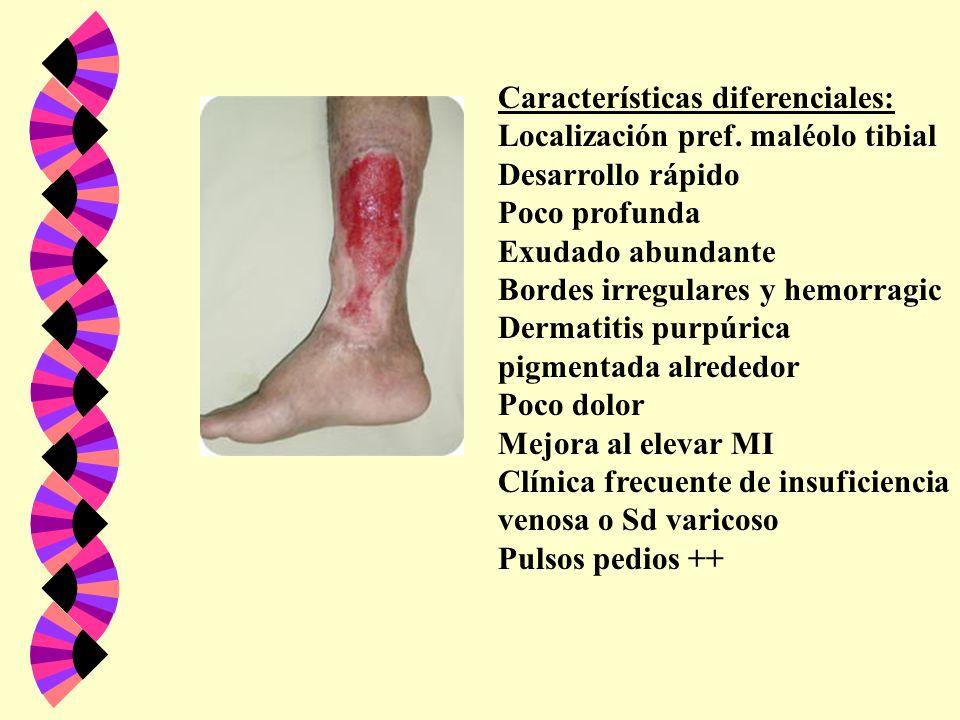 Características diferenciales: