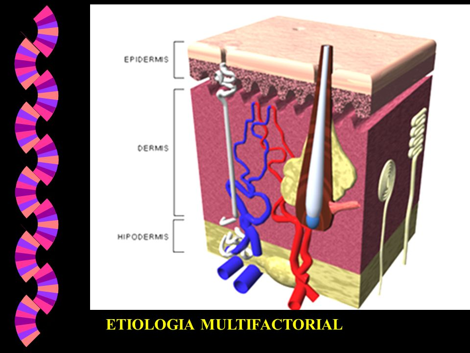 ETIOLOGIA MULTIFACTORIAL