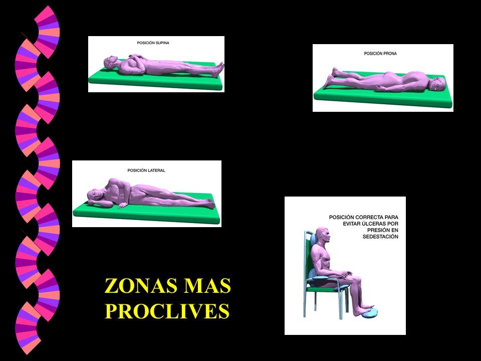 ZONAS MAS PROCLIVES