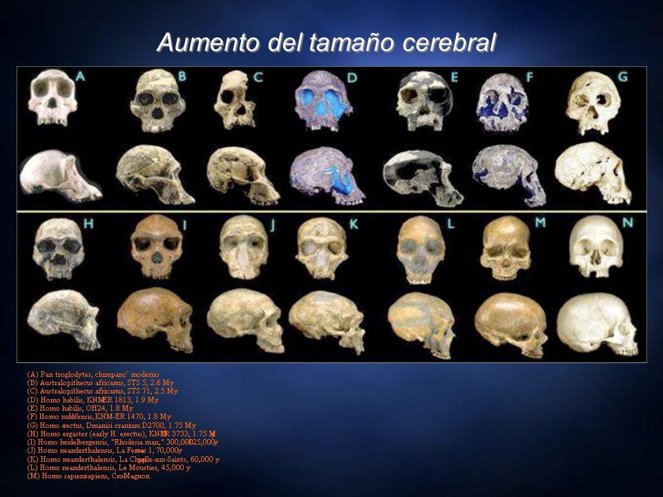 Aumento del tamaño cerebral