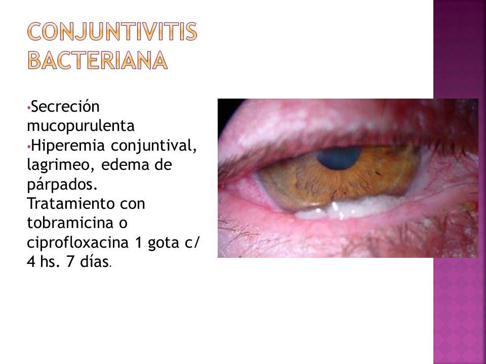 Conjuntivitis bacteriana