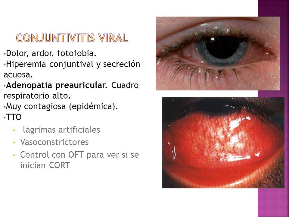 Conjuntivitis viral Dolor, ardor, fotofobia.