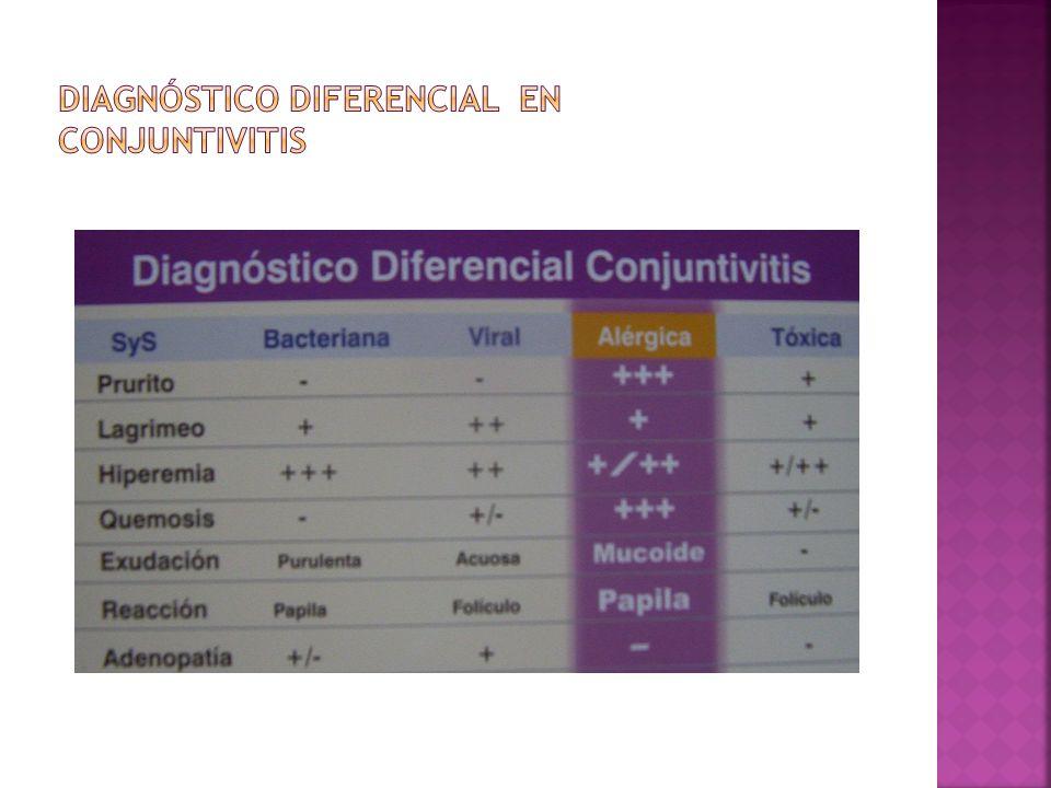 Diagnóstico diferencial en conjuntivitis