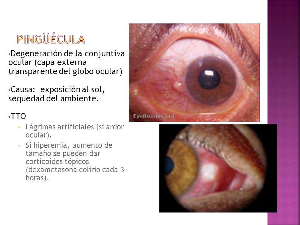 Pingüécula Degeneración de la conjuntiva ocular (capa externa transparente del globo ocular) Causa: exposición al sol, sequedad del ambiente.