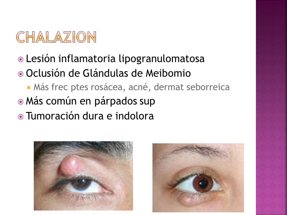 CHALAZION Lesión inflamatoria lipogranulomatosa
