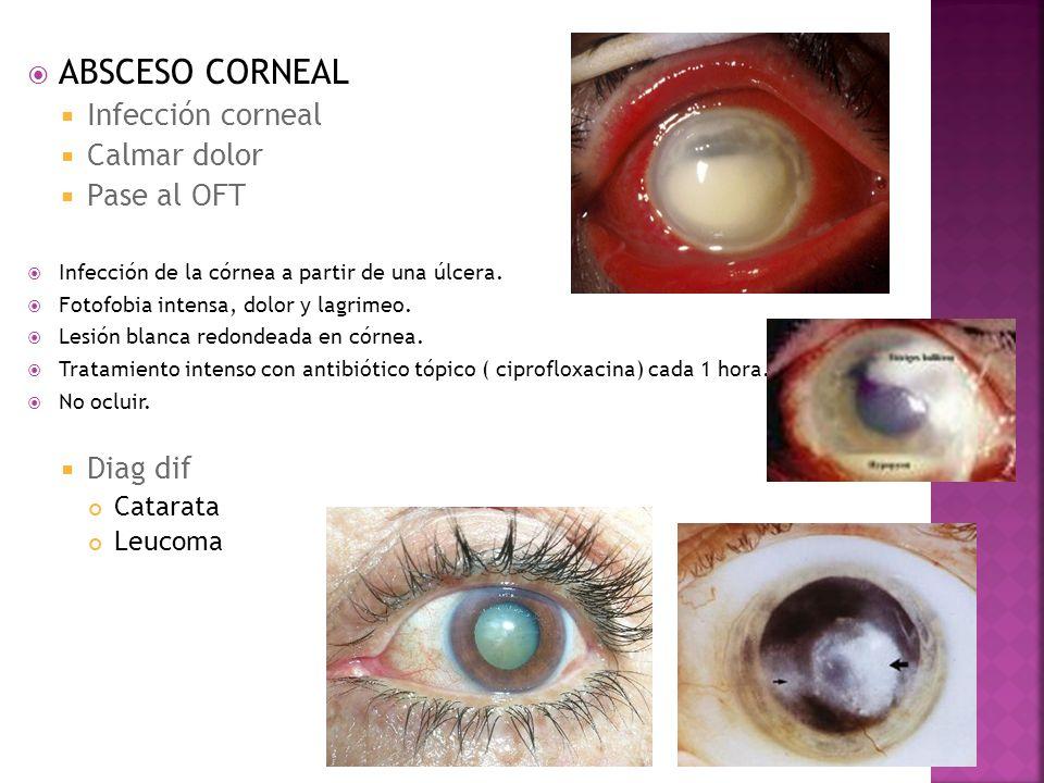 ABSCESO CORNEAL Infección corneal Calmar dolor Pase al OFT Diag dif