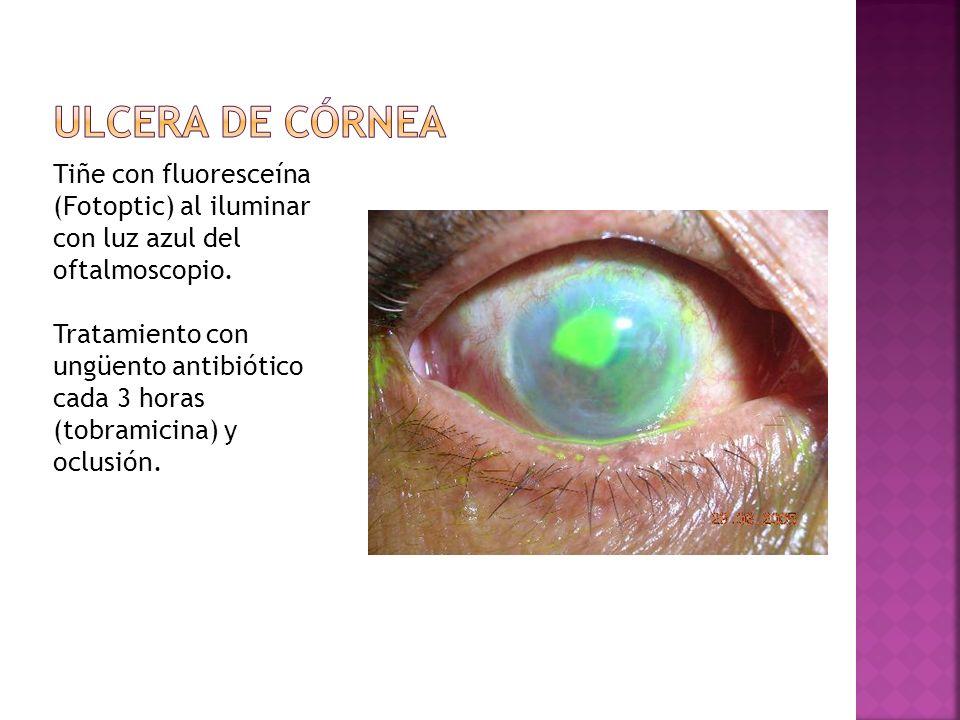 Ulcera de córnea Tiñe con fluoresceína (Fotoptic) al iluminar con luz azul del oftalmoscopio.