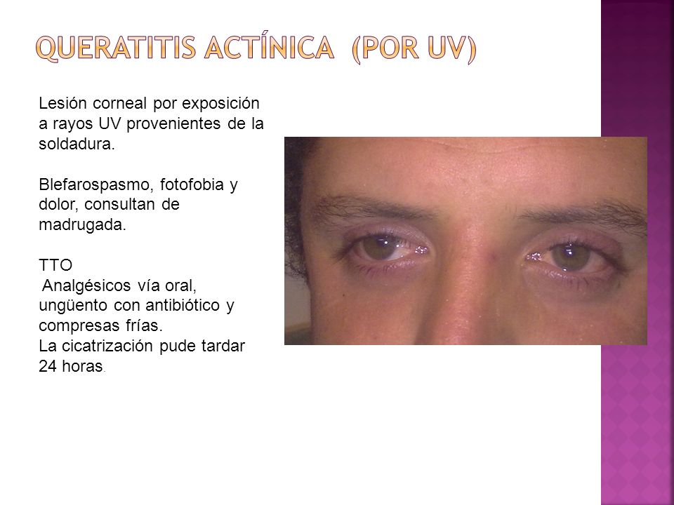 Queratitis actínica (por UV)