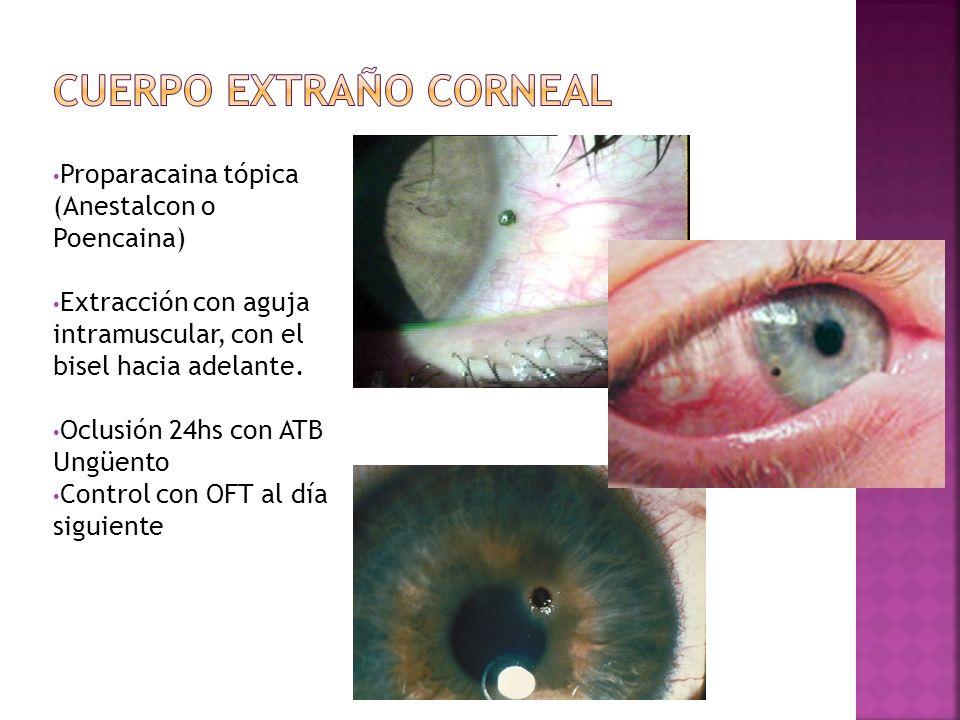 Cuerpo extraño corneal