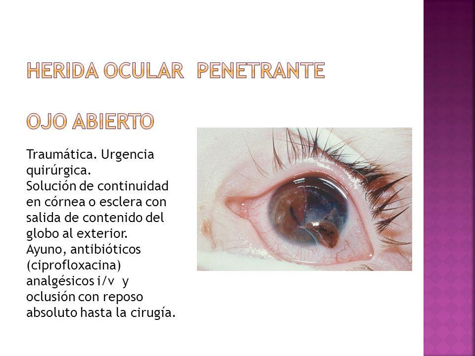 Herida ocular penetrante OJO ABIERTO