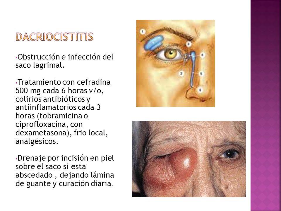 Dacriocistitis Obstrucción e infección del saco lagrimal.