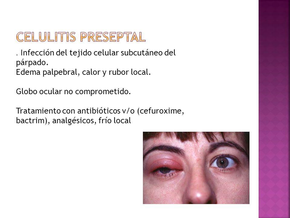Celulitis preseptal Edema palpebral, calor y rubor local.