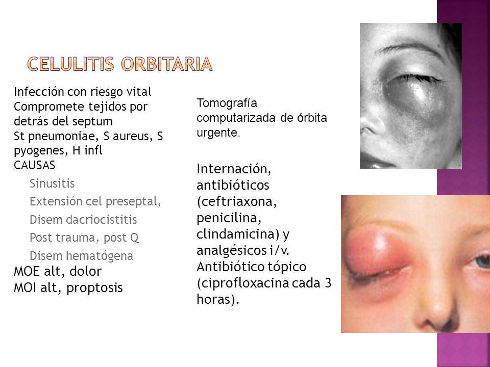 Celulitis orbitariaInfección con riesgo vital. Compromete tejidos por detrás del septum. St pneumoniae, S aureus, S pyogenes, H infl.