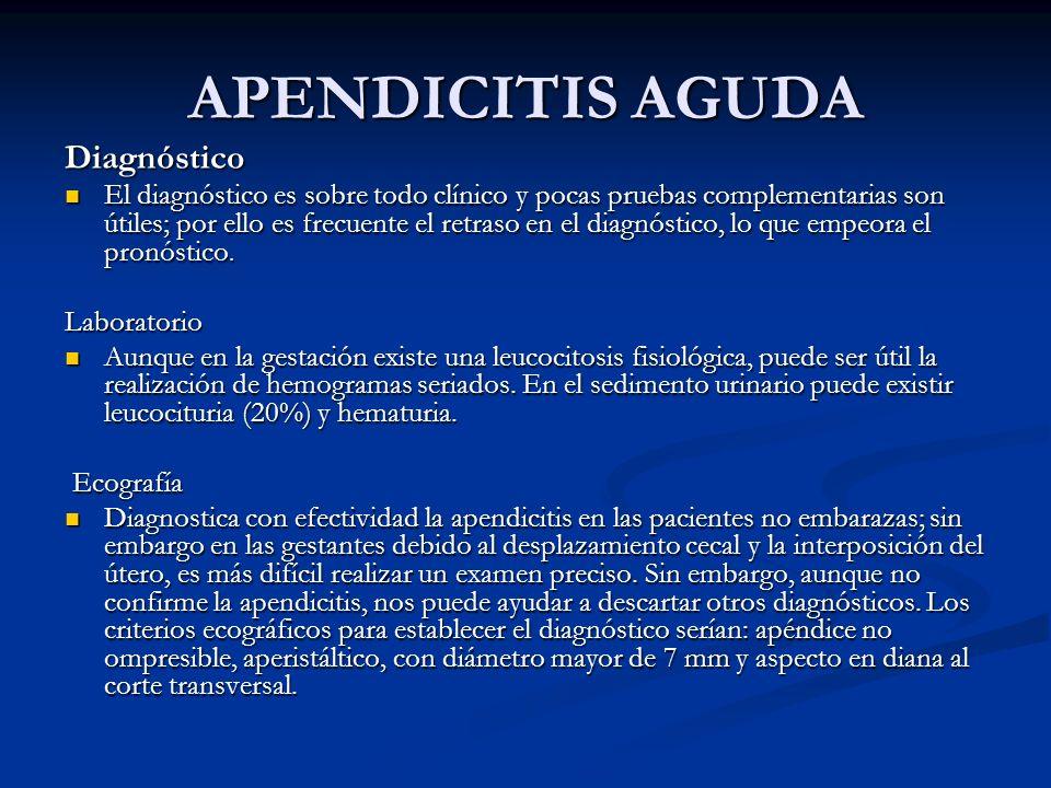 APENDICITIS AGUDA Diagnóstico