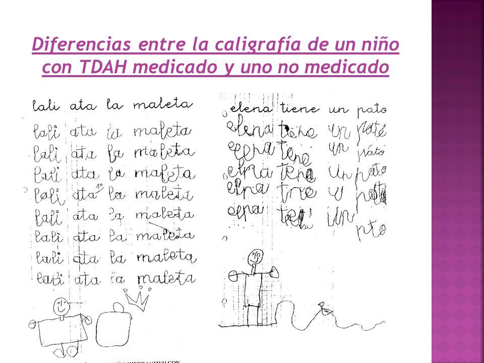 Diferencias entre la caligrafía de un niño con TDAH medicado y uno no medicado