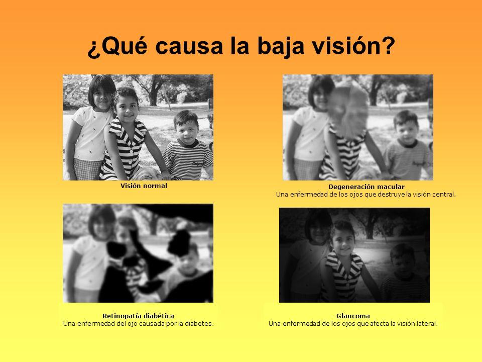 ¿Qué causa la baja visión
