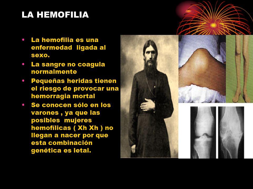 LA HEMOFILIA La hemofilia es una enfermedad ligada al sexo.