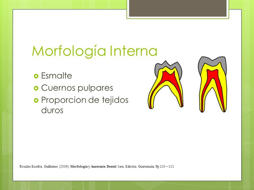 Morfología Interna Esmalte Cuernos pulpares