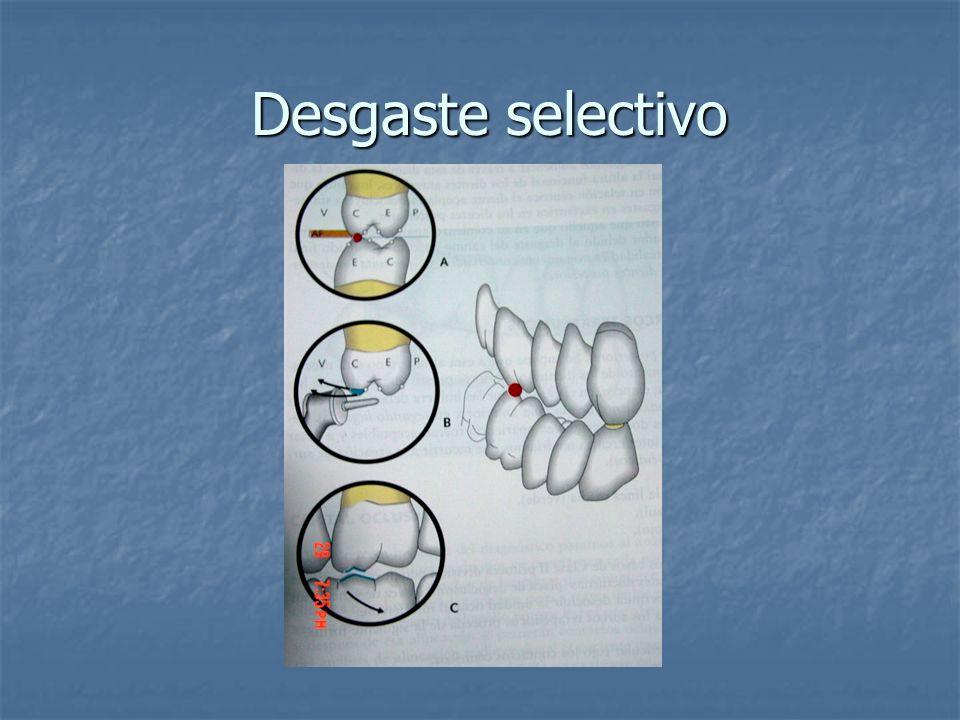 Desgaste selectivo