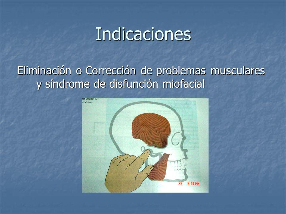 Indicaciones Eliminación o Corrección de problemas musculares y síndrome de disfunción miofacial