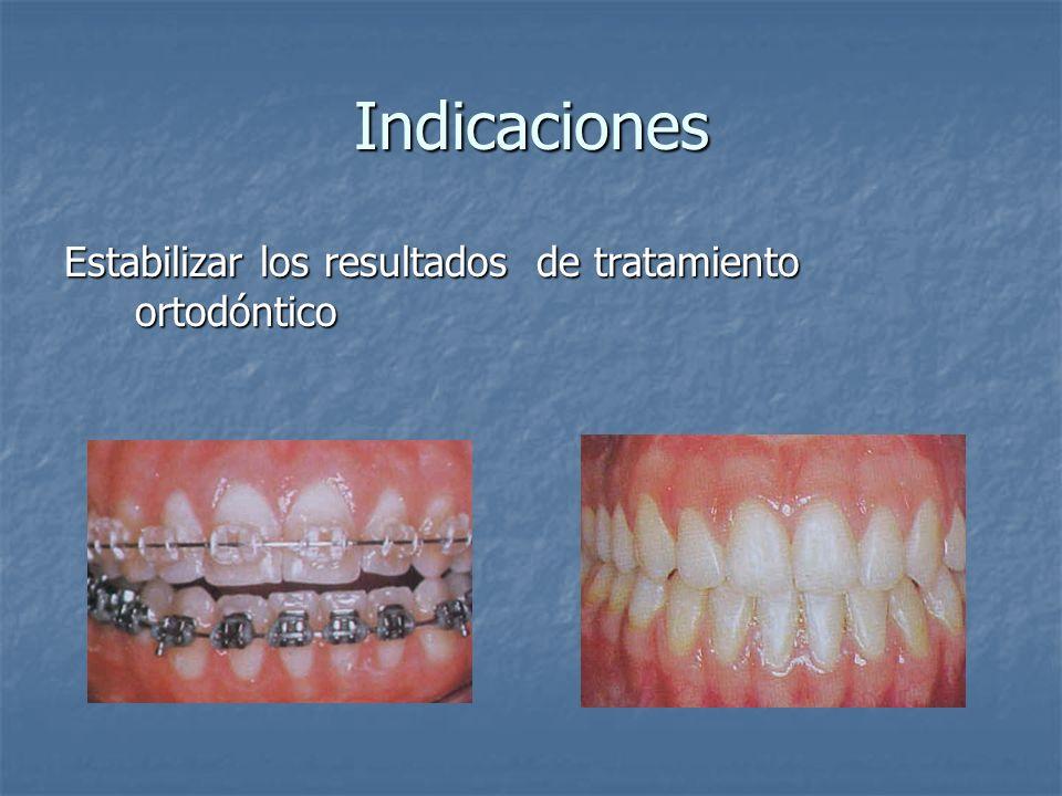 Indicaciones Estabilizar los resultados de tratamiento ortodóntico